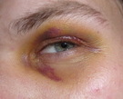 Moretón ojo