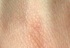 piel flacida
