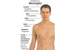 Sintomas de meningitis