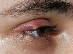 Grano en el ojo
