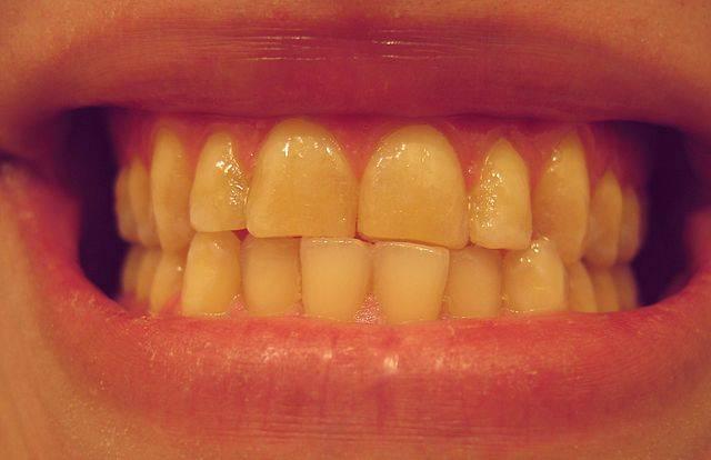 7 Plantas Para Os Dentes Innatia Com