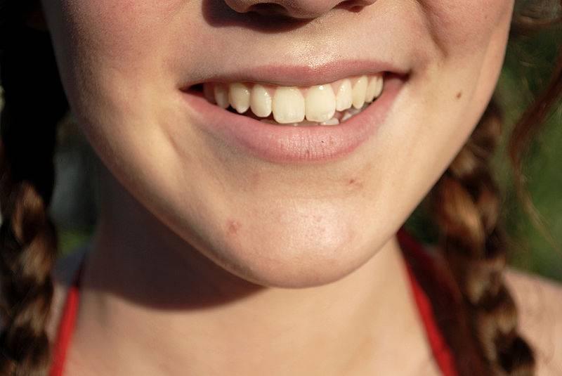 7 Tratamentos Naturais Para Manter Dentes Saudaveis E Bem Brancos