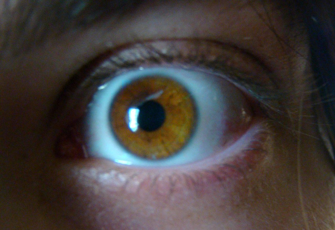 Os Melhores Truques Para A Dor Nos Olhos Innatia Com