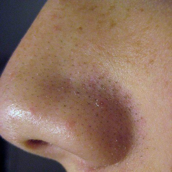 Zone di problema di pelle di faccia